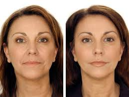 you look younger than ever after this treatment