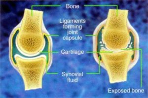 menopausal belly fat can cause joint pressure and thus arthritis