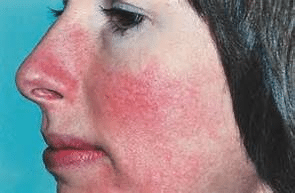 if you need help falling asleep it means you have serious inflammation of skin