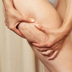 scientifically proven ways to get rid of cellulite