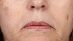 ways to get rid of age spots
