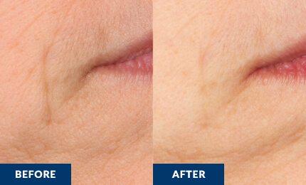 How to tighten skin