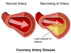 how to prevent plaquing in coronary arteries
